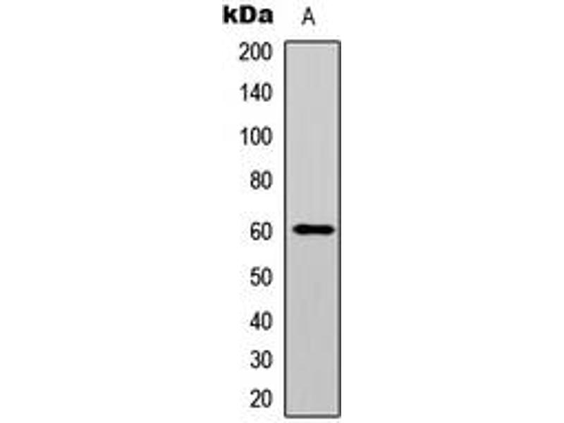 Western Blotting (WB) image for anti-V-Akt Murine Thymoma Viral Oncogene Homolog 1 (AKT1) (C-Term), (pTyr474) antibody (ABIN2704460)