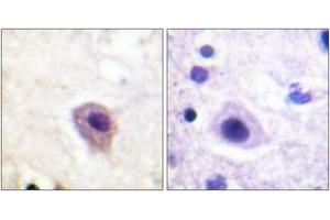 Image no. 2 for anti-Dystrophin Related Protein 2 (DRP2) (AA 480-529), (pThr514) antibody (ABIN1531738)