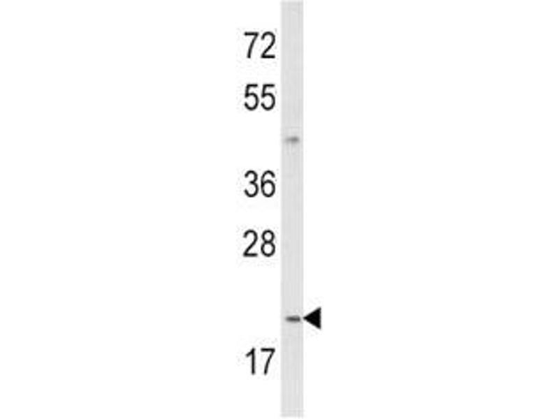 Western Blotting (WB) image for anti-Interleukin 12 (IL12) (AA 168-195) antibody (ABIN3031445)