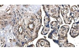 Immunohistochemistry (IHC) image for anti-FIGF antibody (C-Fos Induced Growth Factor (Vascular Endothelial Growth Factor D)) (ABIN258825)