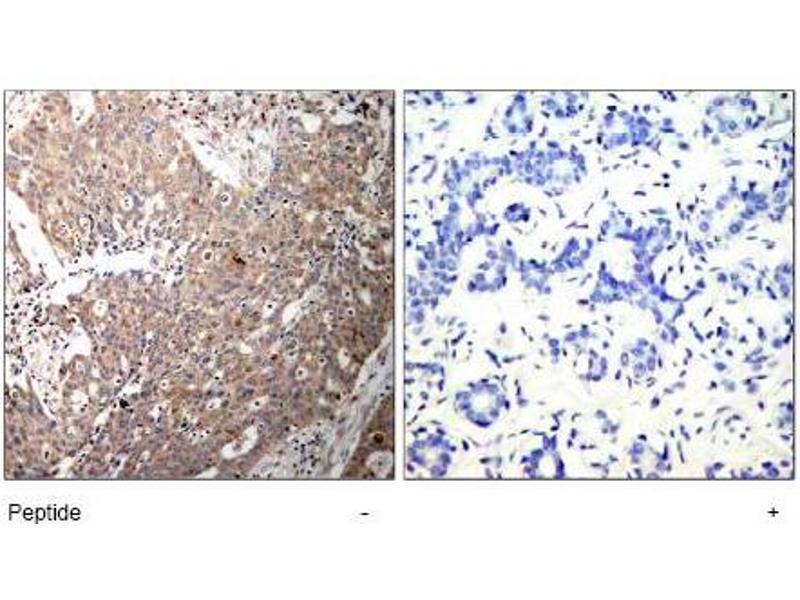 image for anti-KRT18 antibody (Keratin 18) (AA 31-35) (ABIN197580)
