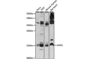Image no. 1 for anti-Arginine Vasopressin Induced Protein 1 (AVPI1) antibody (ABIN6292453)