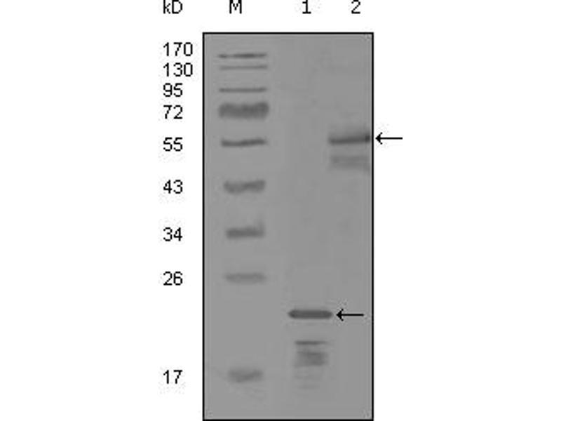 Image no. 2 for anti-Receptor Tyrosine-Protein Kinase ErbB-3 (ERBB3) antibody (ABIN1576344)