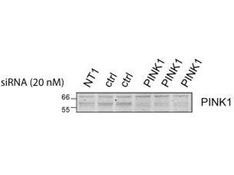 Western Blotting (WB) image for anti-PTEN Induced Putative Kinase 1 (PINK1) (AA 175-250) antibody (ABIN249446)