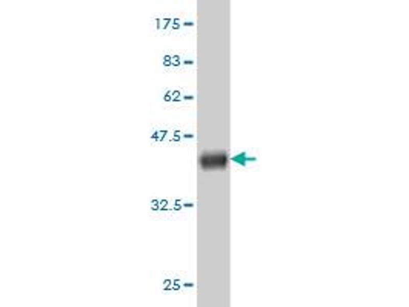 Image no. 5 for anti-Glutamate-Cysteine Ligase, Catalytic Subunit (GCLC) (AA 528-637) antibody (ABIN561050)