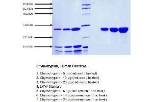Image no. 1 for Chymotrypsin (CTRL) (Active) protein (ABIN1981452)