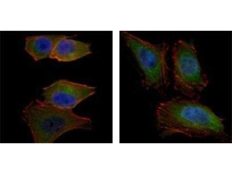 Immunofluorescence (IF) image for anti-AKT2 antibody (V-Akt Murine Thymoma Viral Oncogene Homolog 2) (ABIN4279055)