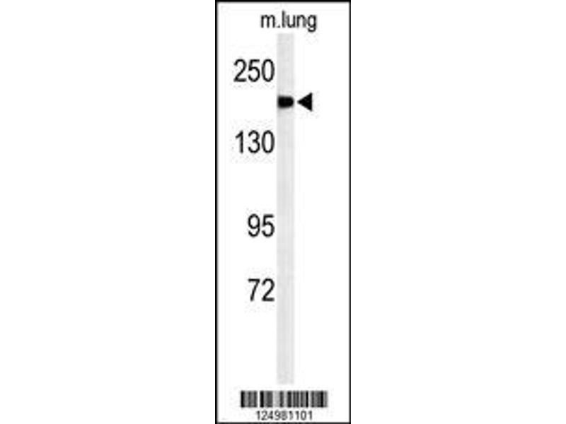 Western Blotting (WB) image for anti-alpha-2-Macroglobulin-Like 1 (A2ML1) (AA 345-373), (N-Term) antibody (ABIN650922)