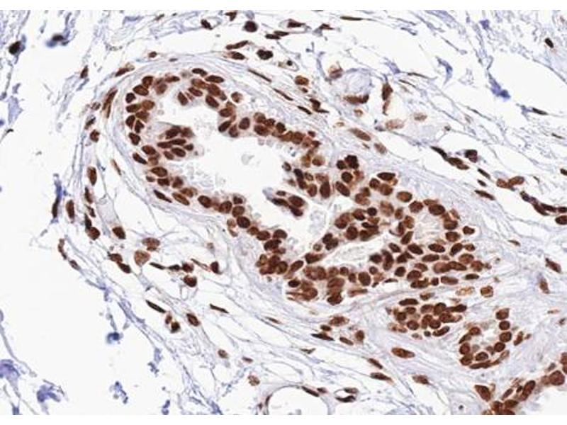 Immunohistochemistry (IHC) image for anti-Signal Transducer and Activator of Transcription 2, 113kDa (STAT2) (pTyr690) antibody (ABIN6256788)