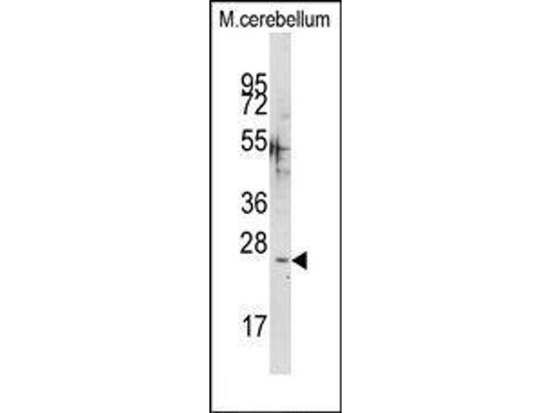 Western Blotting (WB) image for anti-Calcium Binding Protein 1 (CABP1) (C-Term) antibody (ABIN359761)