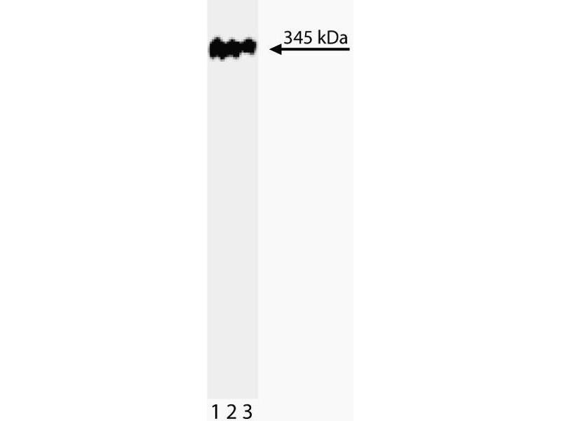 Western Blotting (WB) image for anti-Tumor Protein P53 Binding Protein 1 (TP53BP1) (AA 149-259) antibody (ABIN968861)