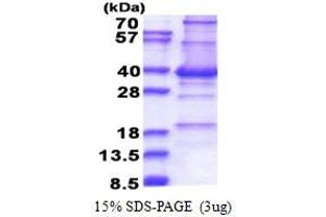 Image no. 1 for Centromere Protein P (CENPP) (AA 1-288) protein (His tag) (ABIN5853397)