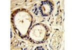 Immunohistochemistry (Paraffin-embedded Sections) (IHC (p)) image for anti-Cortactin antibody (CTTN) (AA 16-46) (ABIN951670)