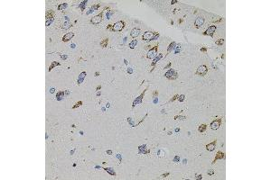 Immunohistochemistry (Paraffin-embedded Sections) (IHC (p)) image for anti-Vascular Endothelial Growth Factor C (VEGFC) antibody (ABIN3023364)
