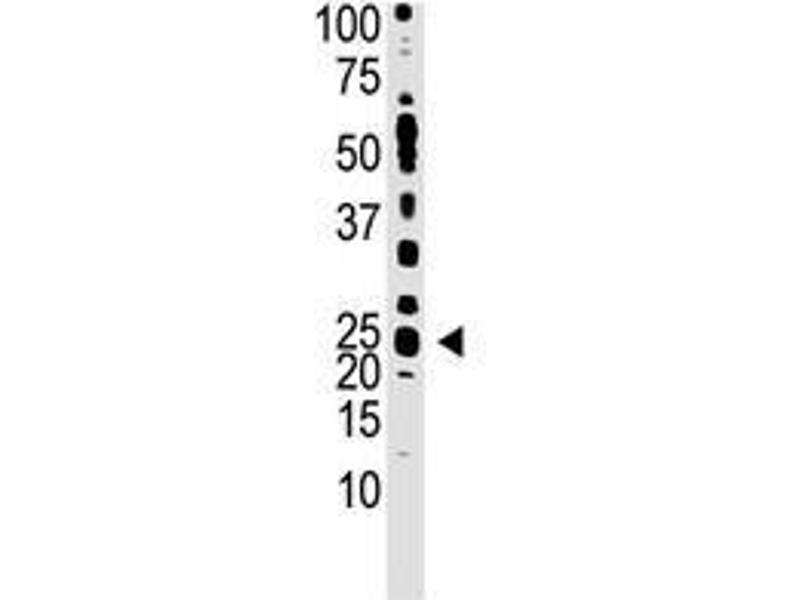 Image no. 1 for anti-Teratocarcinoma-Derived Growth Factor 1 (TDGF1) (N-Term) antibody (ABIN357430)