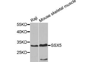Image no. 1 for anti-Synovial Sarcoma, X Breakpoint 5 (SSX5) antibody (ABIN6571315)