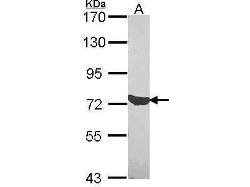 Western Blotting (WB) image for anti-C1S antibody (Complement Component 1, S Subcomponent) (Center) (ABIN2856109)