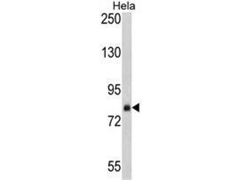 Western Blotting (WB) image for anti-Signal Recognition Particle 72kDa (SRP72) (AA 126-156), (Middle Region) antibody (ABIN453397)