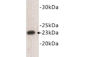 Western Blotting (WB) image for anti-CD3e Molecule, epsilon (CD3-TCR Complex) (CD3E) (N-Term) antibody (ABIN1854857)