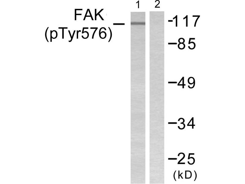 Image no. 2 for anti-PTK2 Protein tyrosine Kinase 2 (PTK2) (pTyr576) antibody (ABIN1576434)