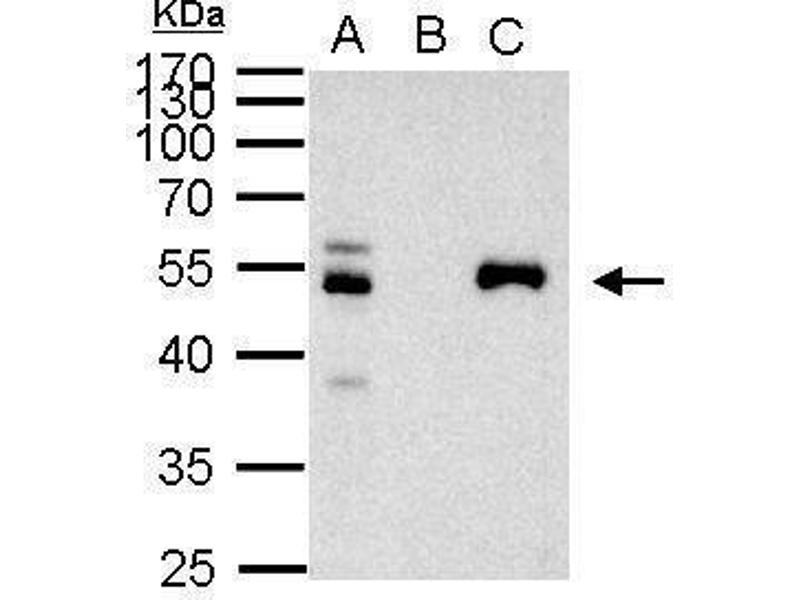Immunoprecipitation (IP) image for anti-Paired Box 8 (PAX8) (Center) antibody (ABIN2855097)