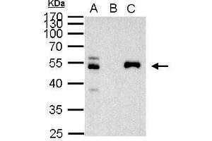 Image no. 2 for anti-Paired Box 8 (PAX8) (Center) antibody (ABIN2855097)