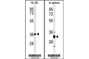 Western Blotting (WB) image for anti-ST8 alpha-N-Acetyl-Neuraminide alpha-2,8-Sialyltransferase 4 (ST8SIA4) (AA 186-214), (Center) antibody (ABIN653728)