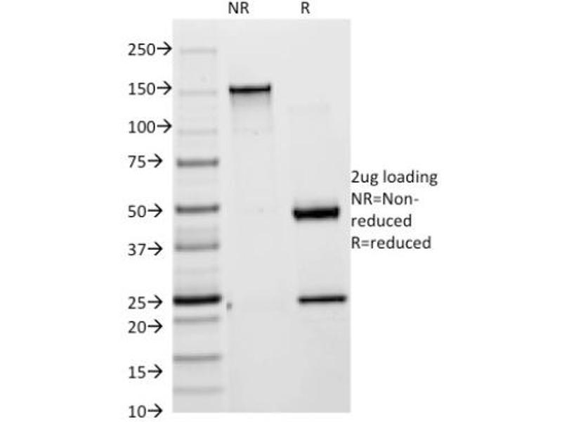 SDS-PAGE (SDS) image for anti-Keratin 18 (KRT18) antibody (ABIN4302634)
