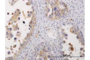 Immunostaining (ISt) image for anti-Non-Muscle Myosin Heavy Polypeptide 9 (MYH9) (AA 131-220) antibody (ABIN518147)