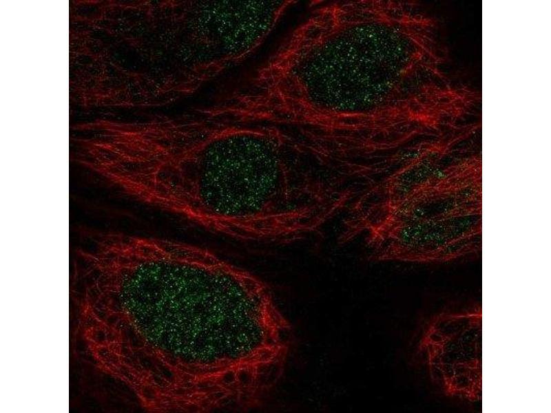 Immunofluorescence (IF) image for anti-Argininosuccinate Synthase 1 (ASS1) antibody (ABIN4281472)