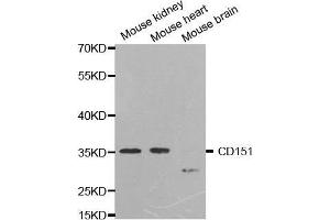 Image no. 1 for anti-CD151 Molecule (Raph Blood Group) (CD151) antibody (ABIN3023661)
