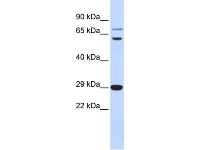 Western Blotting (WB) image for anti-CD40 Ligand (CD40LG) (Middle Region) antibody (ABIN2778145)