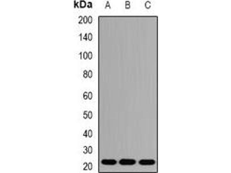 Western Blotting (WB) image for anti-AES antibody (Amino-terminal Enhancer of Split) (ABIN3197865)