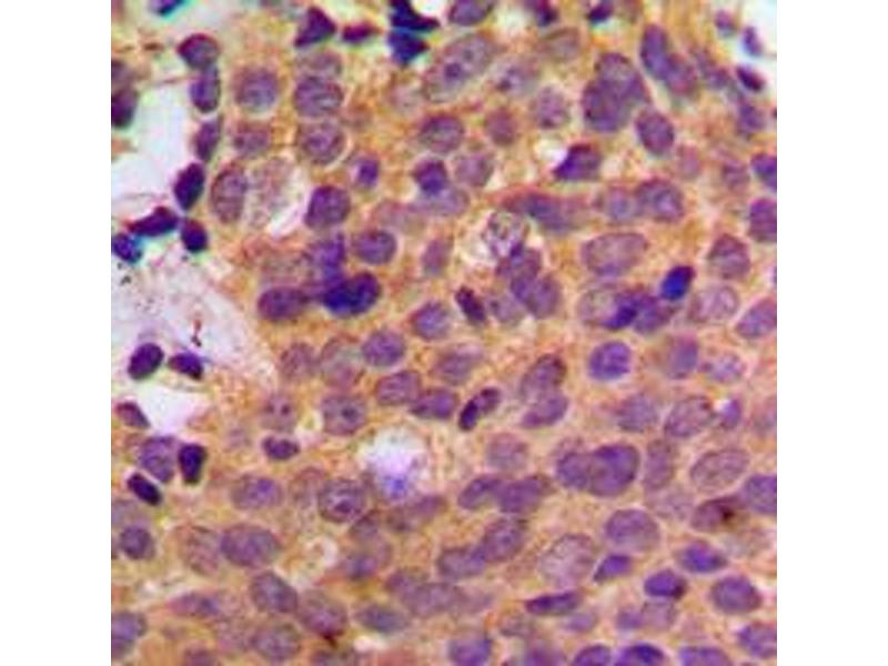 Immunohistochemistry (IHC) image for anti-Casein Kinase 1, alpha 1 (CSNK1A1) (Center) antibody (ABIN2705886)