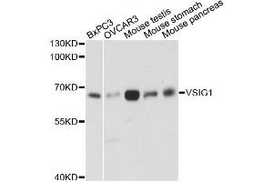 Image no. 1 for anti-V-Set and Immunoglobulin Domain Containing 1 (VSIG1) antibody (ABIN6568189)