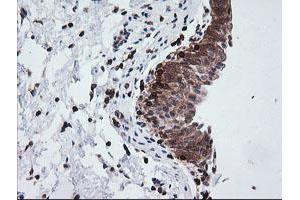 Image no. 4 for anti-Differentially Expressed in FDCP 6 Homolog (Mouse) (DEF6) antibody (ABIN1497808)