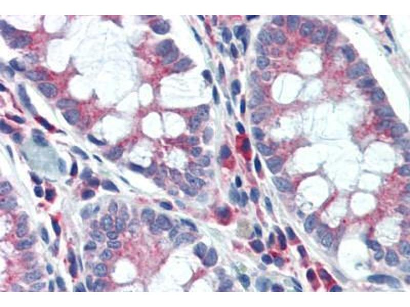 Image no. 3 for anti-Niemann-Pick Disease, Type C1 (NPC1) antibody (ABIN462125)