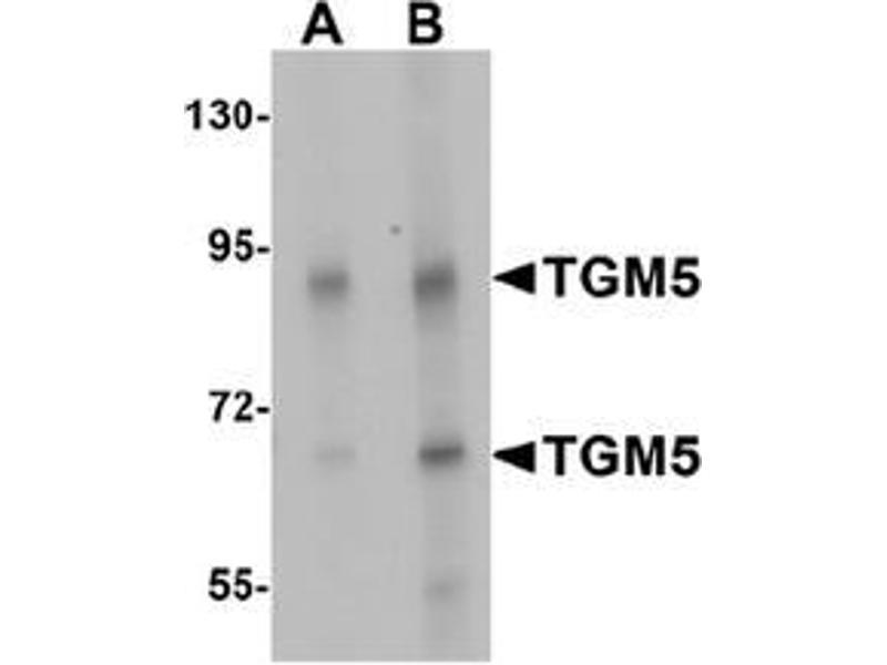Western Blotting (WB) image for anti-Transglutaminase 5 antibody (TGM5) (C-Term) (ABIN1450065)
