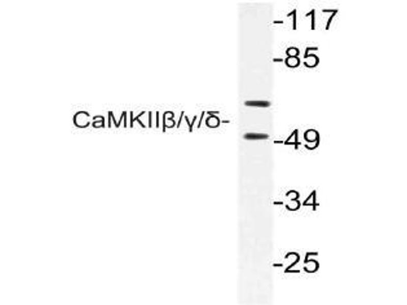 Western Blotting (WB) image for anti-Calcium/calmodulin-Dependent Protein Kinase (CaM Kinase) II beta (CAMK2B) antibody (ABIN499009)