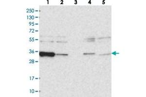 Image no. 2 for anti-ARP6 Actin-Related Protein 6 Homolog (Yeast) (ACTR6) antibody (ABIN5571965)