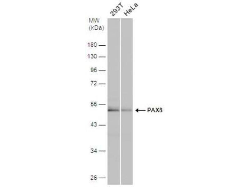Western Blotting (WB) image for anti-Paired Box 8 (PAX8) (Center) antibody (ABIN442408)