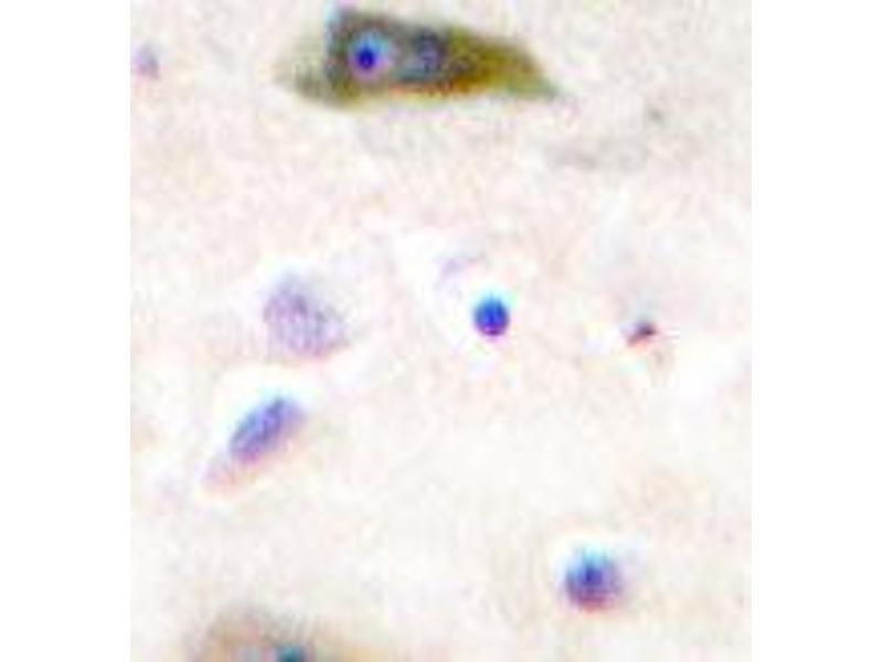 Immunohistochemistry (IHC) image for anti-GRIA2 antibody (Glutamate Receptor, Ionotropic, AMPA 2) (Tyr873) (ABIN447064)