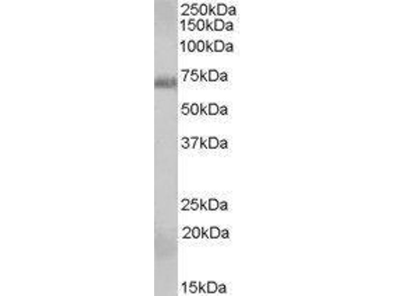 Western Blotting (WB) image for RAD9 Homolog A (S. Pombe) (RAD9A) peptide (ABIN369636)