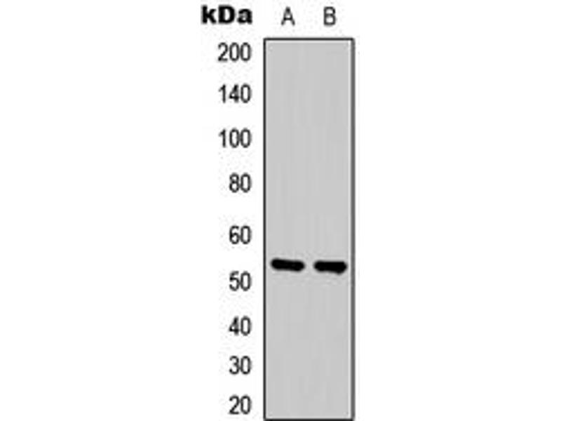 Western Blotting (WB) image for anti-SGK1 antibody (serum/glucocorticoid Regulated Kinase 1) (Center) (ABIN2707036)