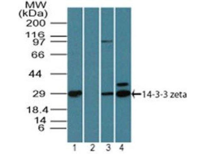 Western Blotting (WB) image for anti-tyrosine 3-Monooxygenase/tryptophan 5-Monooxygenase Activation Protein, zeta Polypeptide (YWHAZ) antibody (ABIN4276716)