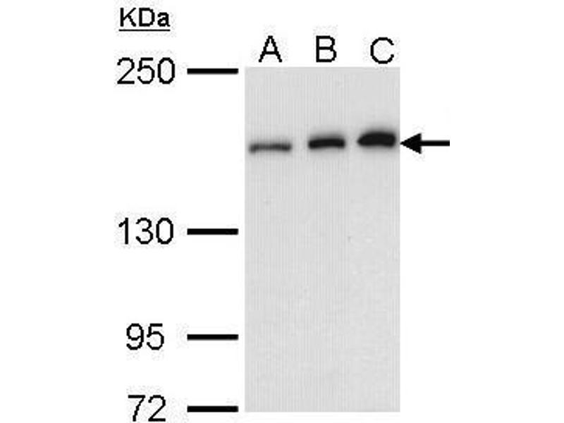 Western Blotting (WB) image for anti-rho-Associated, Coiled-Coil Containing Protein Kinase 1 (ROCK1) (N-Term) antibody (ABIN2856887)