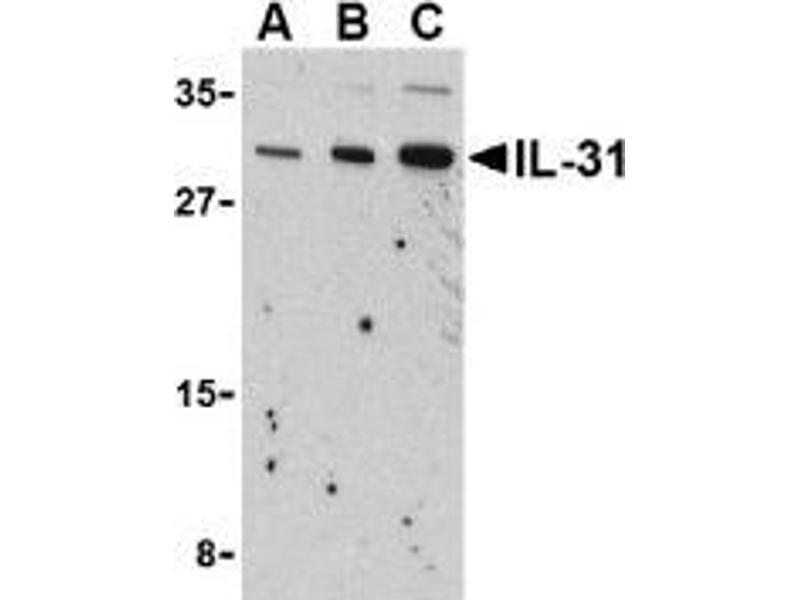 Western Blotting (WB) image for anti-Interleukin 31 (IL31) (N-Term) antibody (ABIN500004)