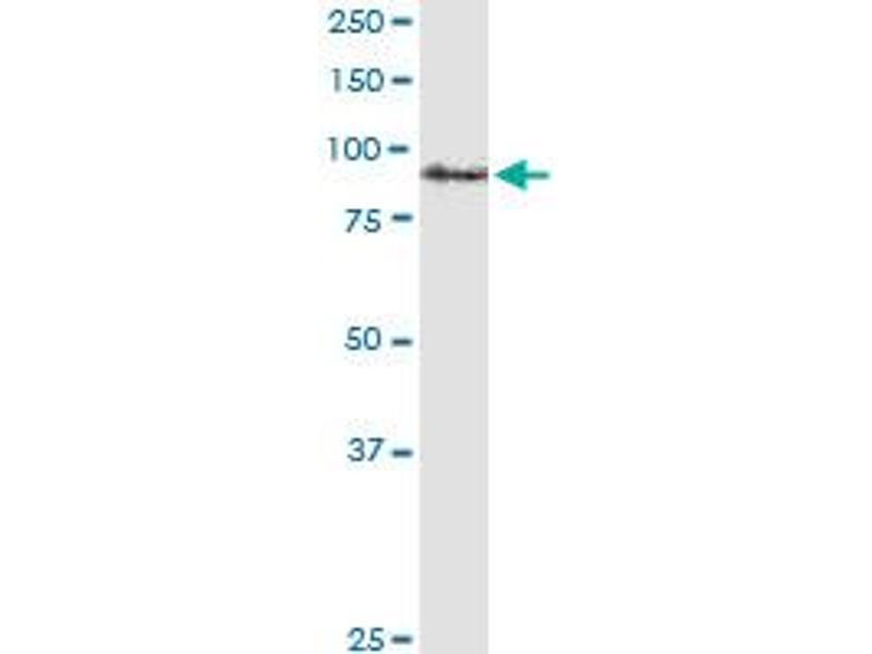 Western Blotting (WB) image for anti-Amyloid beta (A4) Precursor Protein (APP) (AA 19-305), (full length) antibody (ABIN559905)