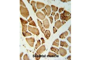 Image no. 1 for anti-5'-Nucleotidase, Cytosolic IA (NT5C1A) (AA 98-127), (N-Term) antibody (ABIN950188)