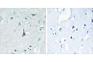 Image no. 1 for anti-Cytochrome P450, Family 3, Subfamily A, Polypeptide 4 (CYP3A4) antibody (ABIN1575971)
